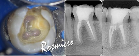 Orifices bonding and final X-ray images. Apical enlargement 50.02 on mesials and 60.02 in distal. Obturation technique was only injection by Obtura