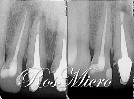 Preop and postop X-rays