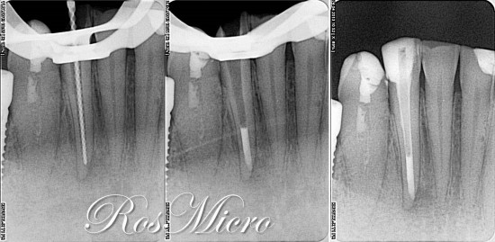 After two weeks with calcium hydroxide dressing apical third was sealed with MTA plug and final restoration was done.