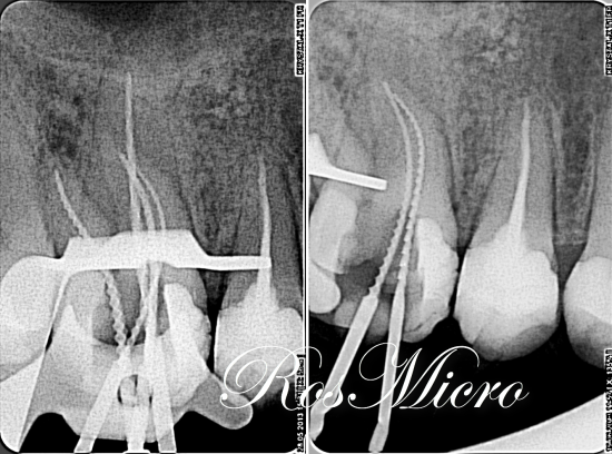 Disinfection was done with instrumentation with copious   sodium hypochlorite irrigation and completed by Ca(OH)2 dressing for 3 weeks. All 3 mesial roots were enlarged by #45.02, palatal root up to 60.02