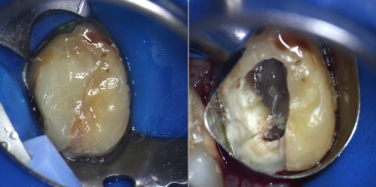 after all old restorations removal and distal margin exposure the decision of re-treatment possibility was made
